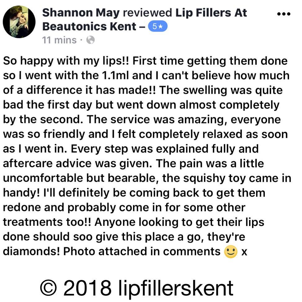 lipfillerskentreview4